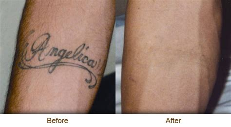 dr walker tattoo removal solution picture 10