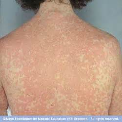 inflammation of skin caused by an allergy taking adderall xr picture 3