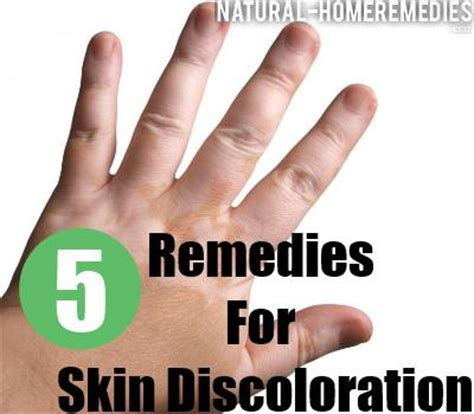 cure of skin discoloration picture 10