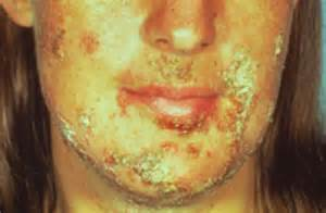 john hopkins herpes picture 9