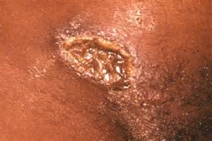 women with herpes in virginia picture 13