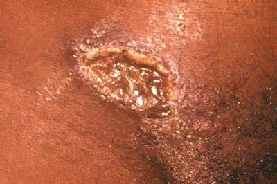 women with herpes in virginia picture 6