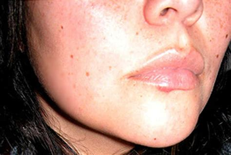 conceal genital acne picture 6