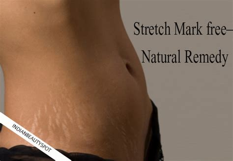 aunties stretch mark on stomach pics picture 3