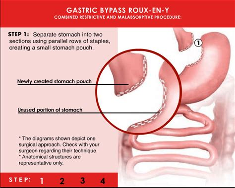 will gastric byp work if you are weight picture 5
