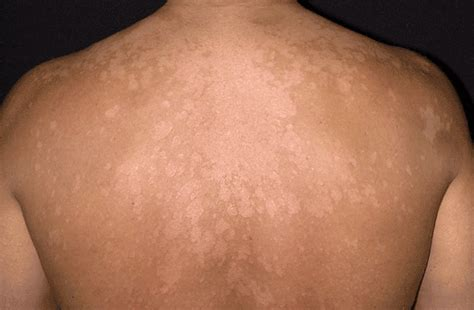 white spots on skin that cause fungi picture 7