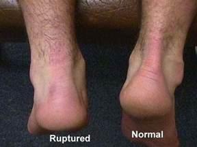 heavy-load eccentric calf muscle trainingcalf strain picture 2