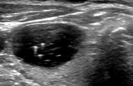 echogenic foci thyroid picture 1
