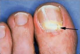 can candida cause toenail fungus picture 19