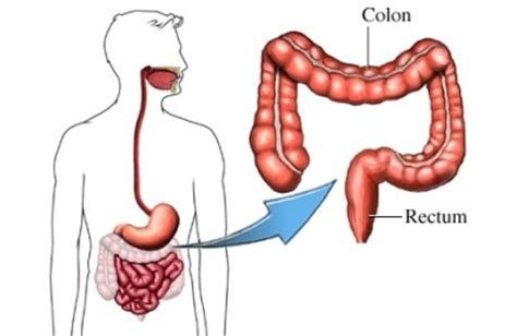 what happens after colon cancer resection picture 10