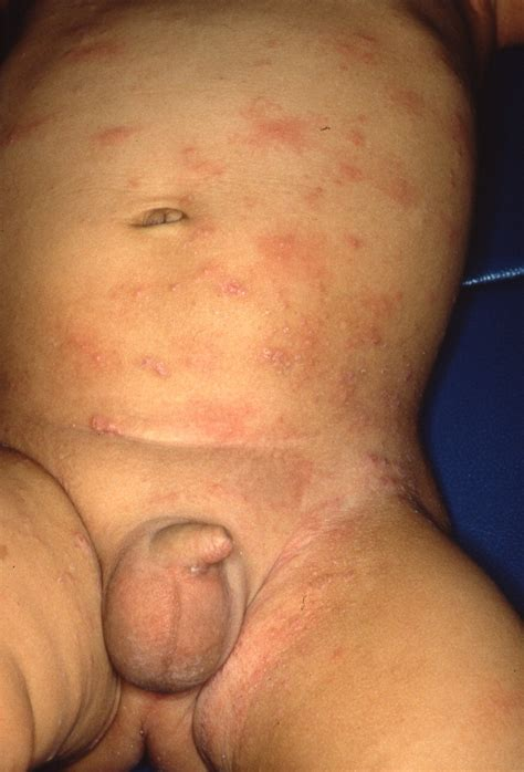 pictures of hives on the face picture 4