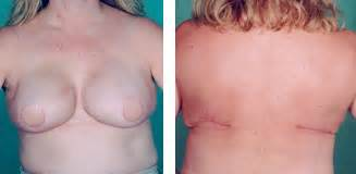 breast augmentation success rate picture 2