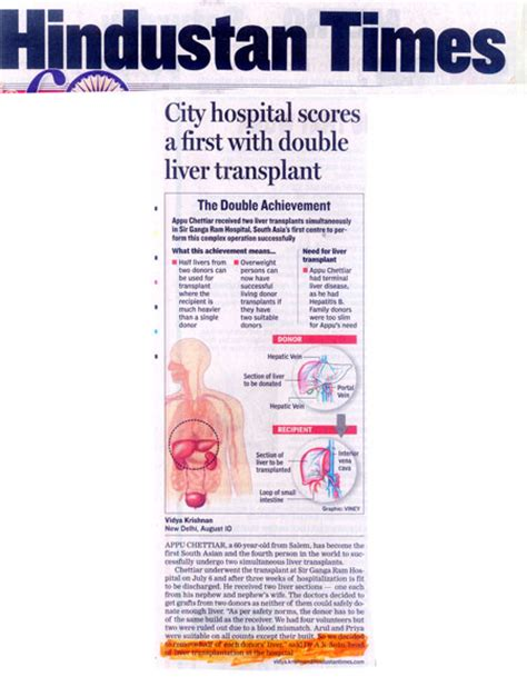 actor with double liver transplant picture 10