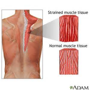 how to treat a pulled muscle picture 9