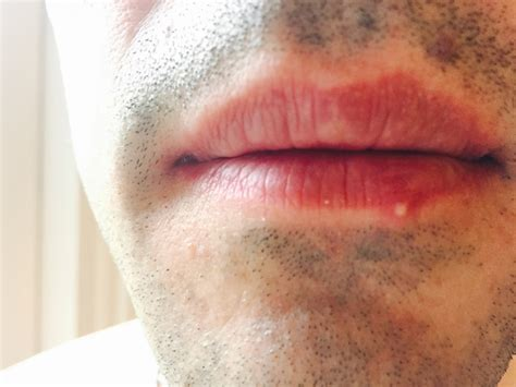 pimples on lip herpes picture 5