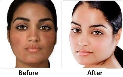 skin whitening pills for black people picture 4
