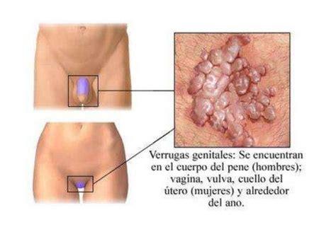 sintomas ng vaginal cancer picture 13