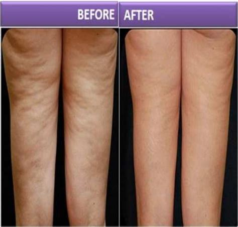 will tanning cure cellulite picture 5