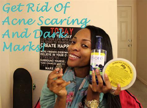 remove acne scars picture 13