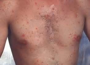 genital skin lesion picture 3