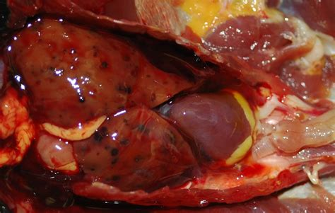 fatty liver diease picture 7