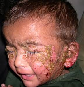 baby skin & face rash picture 10