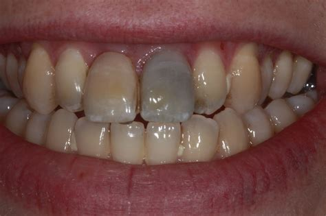 front teeth picture 5