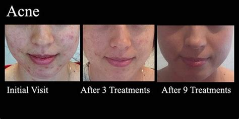 acupunture for acne picture 6