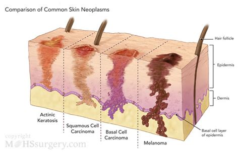 can ultraviolet light cause skin cancer picture 6