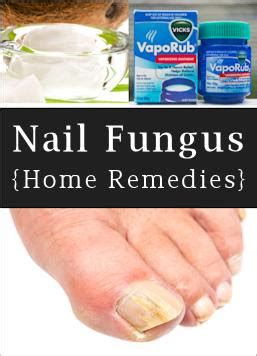 nail fungus home remedies picture 10