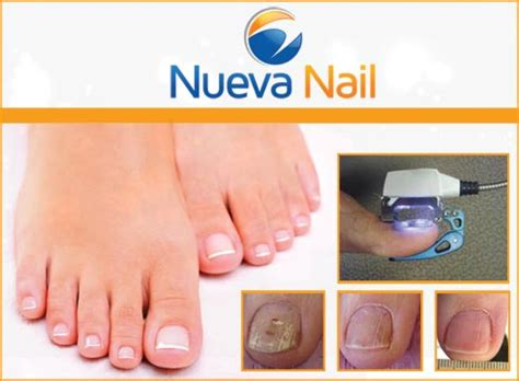 toe nail fungal treatment lasar picture 2