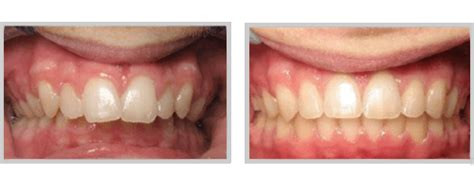 correcting h from overbite picture 13