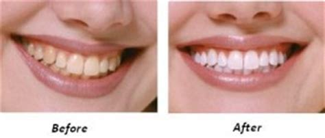 fort worth tooth whitening picture 5