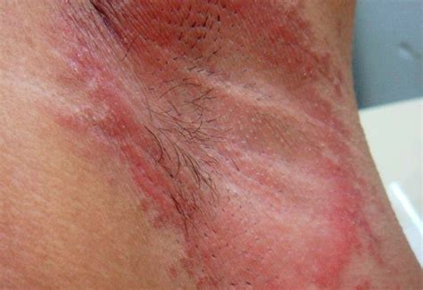 fungal skin rashes picture 3