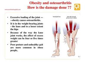 overweight effects on knee joints picture 2