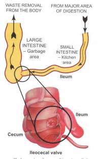 bowel valve picture 7