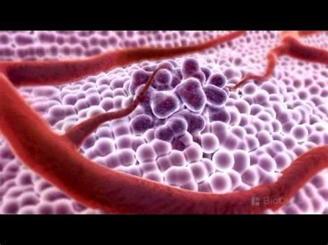 3d breast cancer animation picture 6