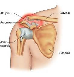 actomidclaviculat joint pain picture 9