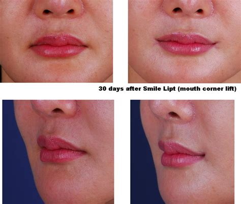 corner lip lift, uk picture 19