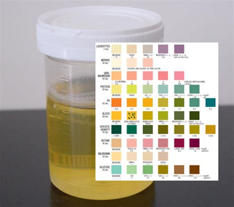 Urine tests for infected prostate picture 3