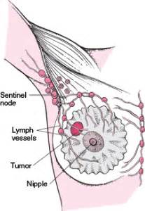 breast augmentation and leaking of lymph nodes picture 18