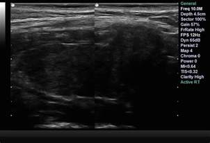 autoimmune thyroiditis disease lymphocytic lymph nodes picture 3
