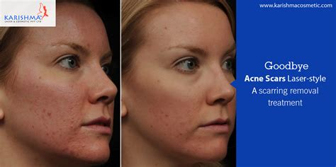 acne scar treatment in sf picture 1