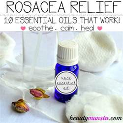rosacea young living oils picture 5