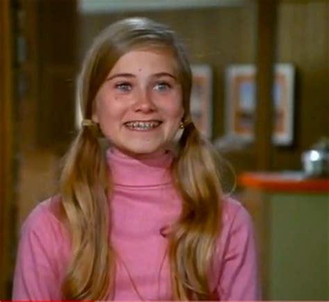 braces teeth high school fifties picture 1