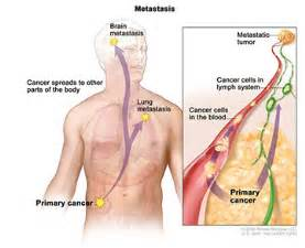 metastisized colon cancer picture 6