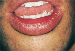 lips diseases picture 1