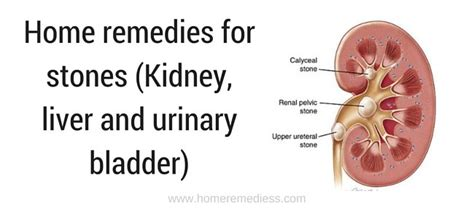 urinary pain liver numbers up picture 11