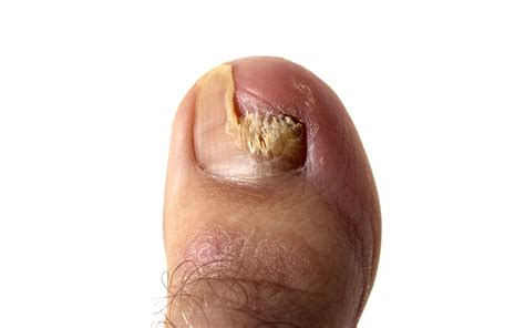 listerine therapy for toenail fungus picture 2