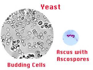 ascus yeast infection picture 2